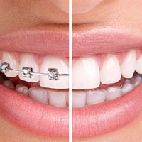 Invisalign Clear Braces, Dentist Amherstburg